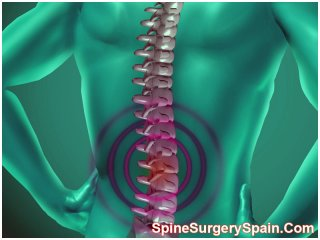 Spine fusion