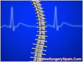 Artificial Disc-replacement Spain