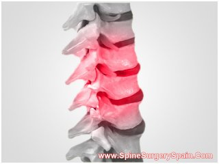Lumbar Spinal Stenosis Surgery in Barcelona